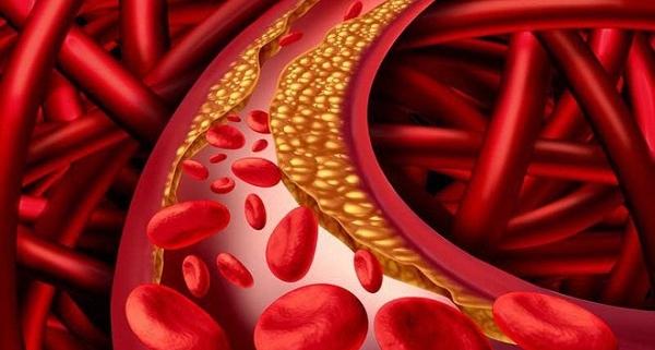 xét nghiệm mỡ máu