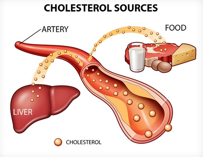 Xét nghiệm cholesterol