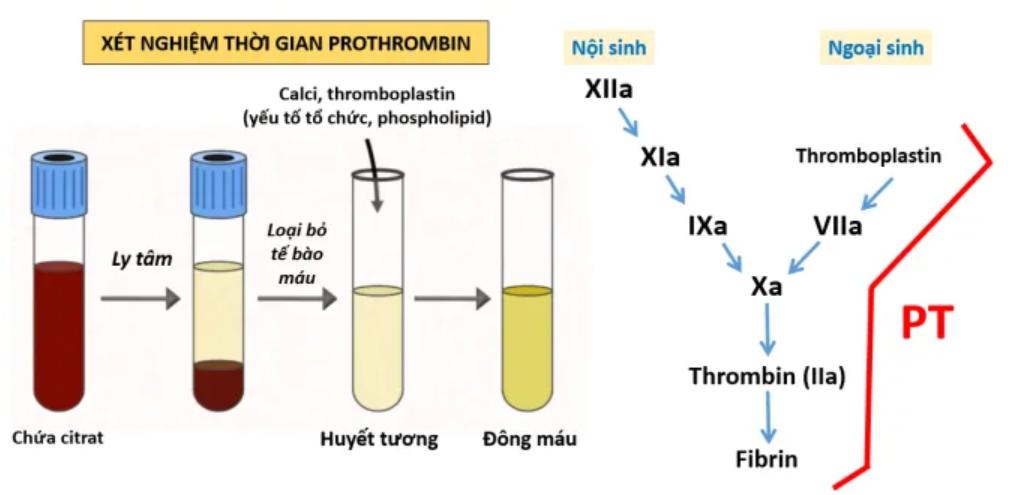 Sơ đồ xét nghiệm thời gian prothrombin - PT